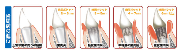 の 腫れ ひく 方法 を 歯茎
