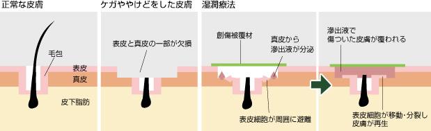 湿潤療法での治癒の仕組み(図)