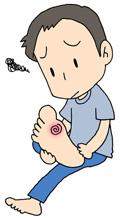 自己治療はキケン!? 魚の目・タコ対処法|病気・症状と予防|eo健康