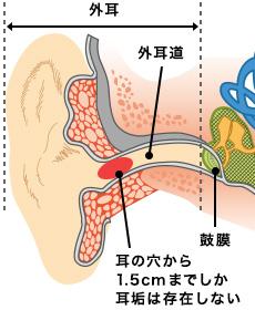 耳垢が湿っている6つの原因。体質?病気?膿がで …
