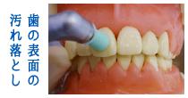 歯の表面の汚れ落とし